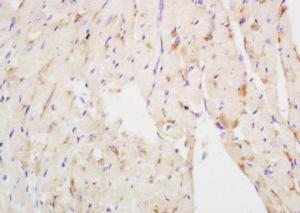 Immunohistochemical analysis of formalin-fixed paraffin embedded mouse heart tissue using NDUFS3 antibody (dilution at 1:200)