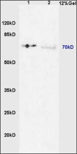 Western blot analysis of mouse liver lysates (Line 1), human colon carcinoma tissue (Line 2) using IRAK1 (phospho-Thr387) antibody.