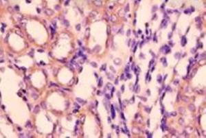 Anti-MLPH Rabbit Polyclonal Antibody