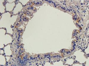 IHC-P staining of rat lung tissue using anti-MARCO (2.5 ug/ml)