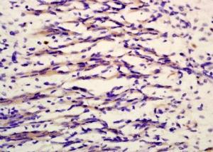 Immunohistochemical analysis of formalin-fixed paraffin embedded mouse heart tissue using MYL9 (phospho-Thr19) antibody (dilution at 1:200)