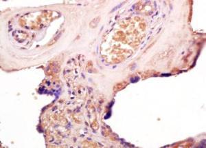 Anti-TLR3 Rabbit Polyclonal Antibody