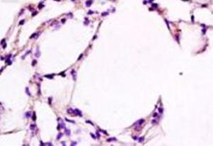 Immunohistochemical analysis of formalin-fixed paraffin embedded rat lung tissue using Cathepsin E antibody (dilution at 1:200)