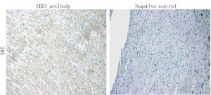 Immunohistochemical staining of rat heart tissue using anti-CD31 (primary antibody at 1:100)