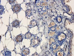 Immunohistochemical staining of paraffin embedded mouse skin tissue using CD31 antibody (primary antibody at 1:200)