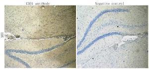 Immunohistochemical staining of paraffin embedded rat brain tissue using CD31 antibody (primary antibody at 1:100)