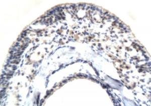 orb10334 shows ICAM1 expression in rat eye cornea tissue