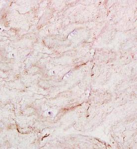 Immunohistochemical analysis of formalin fixed and paraffin embedded rat intervertebral disc using Collagen II antibody (primary antibody at 1:300)
