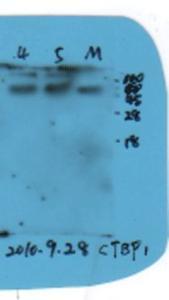 Western blot of mouse liver tissue lysates using CTBP1 antibody