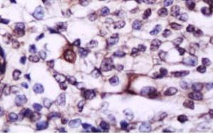 Paraffin-embedded human esophagus carcinoma tissue fixed with 4% paraformaldehyde. Antigen retrieval by boiling with citrate buffer. Blocking buffer is goat serum (37 degrees for 20 min.).IL17A antibody at 1:200 dilution with overnight incubation at 4 deg