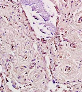 Immunohistochemical analysis of formalin fixed and paraffin embedded human rectal carcinoma using LDL Receptor antibody