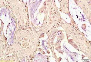 Immunohistochemical staining of paraffin embedded human rectal cancer using OxLDL antibody.