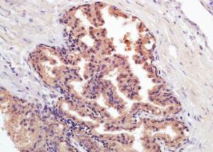 Immunohistochemical analysis of formalin-fixed paraffin embedded human prostate carcinoma tissue using PSA antibody (dilution at 1:200)