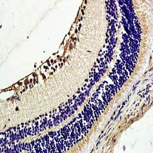 Immunohistochemical analysis of formalin-fixed and paraffin embedded rat retina tissue (dilution at:1:200) using TIE2 antibody