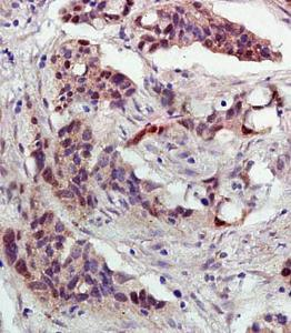 Immunohistochemical analysis of formalin fixed and paraffin embedded human Ovarian Cancer using p53 (acetyl-Lys382) antibody