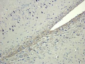 Immunohistochemical staining of rat brain tissue using CXCL14 antibody (dilution of primary antibody - 2.5 ug/ml)