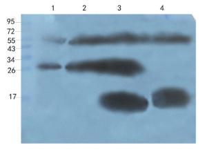Western blot analysis of human breast cancer (lane 1), human thyroid cancer (lane 2), hela cells (lane 3), U251 cells (lane 4) using CXCL14 antibody (1 ug/ml)