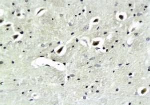 orb11441 shows expression of alpha Synuclein in mouse brain tissue