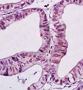 Immunohistochemical analysis of formalin fixed and paraffin embedded human gastric carcinoma using WWOX antibody