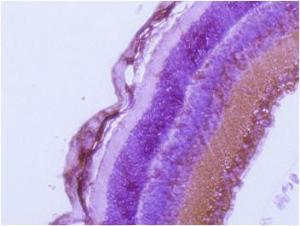 Immunohistochemical analysis of mouse retina using Rab27a antibody.