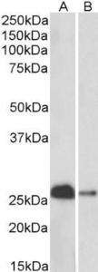 Western blot analysis of staining of Mouse (A) and Rat (B) Brain lysates using CALB1 antibody.