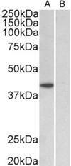 Western blot analysis of staining of HeLa nuclear (A) and cytosolic (B) lysates using TBP antibody.