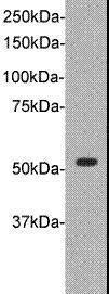 Western blot analysis of A : Jurkat cell using TDT antibody
