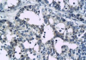 Immunohistochemical staining of paraffin embedded human breast cancer tissue using CCR5 antibody