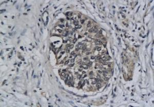 IHC-P of human breast cancer tissue (orb13298 at 1:200)