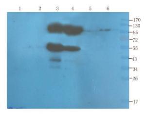 WB analysis of rat spinal cord (lane 1), mouse colon (lane 2), human lung cancer (lane 3), human breast cancer (lane 4), U251 cells (lane 5), Hela cells (lane 6) using CD155 antibody (1 ug/ml)