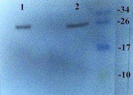Western blot analysis of rat, human liver (Lane 1), lung (Lane 2) using CXCL11 antibody (dilution of primary antibody - 5 ug/ml)