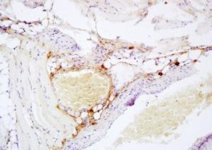 Anti-DPP4 Rabbit Polyclonal Antibody